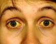 Bệnh sốt vàng: Nguyên nhân, triệu chứng và cách điều trị