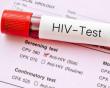 HIV, lây nhiễm, bơm tiêm, lo lắng, nhiệt độ, cuasotinhyeu.