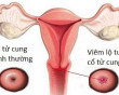 viêm phụ khoa, viêm lộ tuyến, ảnh hưởng, điều trị, u xơ tuyến vú