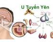 sức khỏe, nội tiết, u tuyến yên, hormon, điều trị