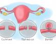 biện pháp tránh thai, triệt sản nữ, có thai, ảnh hưởng, kinh nguyệt