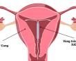 biện pháp tránh thai, vòng tránh thai, dây vòng thò ra cổ tử cung