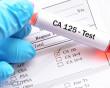 CA125, chỉ số CA 125, ý nghĩa, bệnh lý, ung thư, ung thư buồng trứng