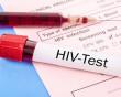 Thử HIV sau phơi nhiễm chưa đủ 6 tháng có cho kết quả giả không ?