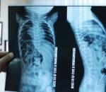 kim khâu, cây kim, phẫu thuật, X-quang, cua so tinh yeu