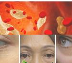 cholesterol, mắt, phòng ngừa, cua so tinh yeu