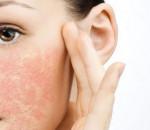 Chăm sóc da mùa đông như thế nào để tránh khô, nứt nẻ?