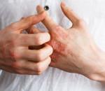 giang mai, xoắn khuẩn, tử vong, biến chứng, nguy hiểm, vô sinh, điều trị, thuốc kháng sinh, lây lan, quan hệ tình dục