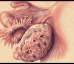 u nang bì buồng trứng, biến chứng của u nang bì buồng trứng, u quái trưởng thành, u quái không trưởng thành, xoắn cuống nang, tính chất u nang bì uồng trứng