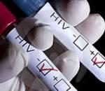 hiv, dấu hiệu mắc hiv, virut, nam giới, sốt, đau họng, mệt mỏi