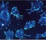 ung thư , tế bào , nghiên cứu khoa học , ghép tế bào gốc , bệnh ung thư , điều trị ung thư , chữa trị ung thư