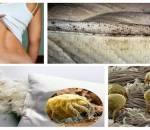 bọ ,côn trùng ,ga giường ,sức khoẻ, gập chăn, bệnh phổi