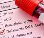 bệnh tan máu, hồng cầu, bẩm sinh, di truyền, thăm khám, bệnh viện, cuasotinhyeu