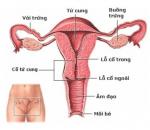 tắc vòi trứng, bên trái, sinh con, tự nhiên, cuasotinhyeu