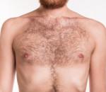 ngực mọc lông, bệnh lý, nam khoa, phụ khoa, cuasotinhyeu