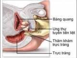 ung thư tuyến tiền liệt, phương pháp điều trị, ung thư, tuyến tiền liệt, phương pháp phẫu thuật, phương pháp xạ trị, phương pháp hóa trị, hocrmone thay thế, liệu pháp sinh học