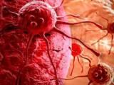 bênh ung thư, Ung thư vú, điều trị ung thư, ung thư, cua so tinh yeu