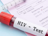 virus hiv, con đường lây nhiễm, xét nghiệm hiv, các loại xét nghiệm hiv, ưu điểm, nhược điểm