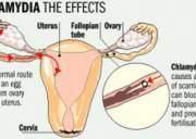 nhiễm khuẩn chlamydia, vi khuẩn gây vô sinh, viêm phụ khoa, viêm phần phụ, vi khuẩn gây dính tắc vòi trứng