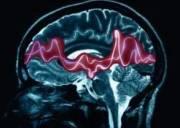 mang thai, động kinh, thuốc chữa động kinh, dị tật cho thai, mang thai lên cơn động kinh, sóng não, phóng điện ở não