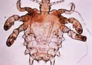bệnh rận mu, bệnh nam khoa, bệnh phụ khoa, rận mu, rận cua, da, lông, tóc, ấu trùng, hút máu