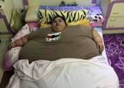 chuyện lạ, người béo, béo phì, điều trị, bệnh