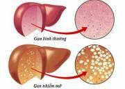 bệnh gan, gan nhiễm mỡ, dấu hiệu nhận biết, sức khỏe, phòng tránh