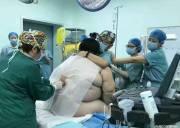 chuyện lạ.bà bầu khổng lồ. thai phụ 127kg, 16 người đỡ đẽ