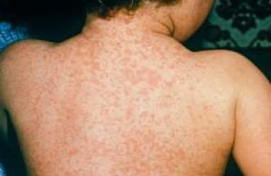 sốt phát ban, sởi, cúm rubella, điều trị sốt phát ban, phòng ngừa sốt phát ban, nguyên nhân sốt phát ban, biến chứng của sốt phát ban