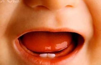lịch mọc răng thông thường của trẻ, chăm sóc trẻ mọc răng, trẻ mọc răng, trẻ mọc răng sữa.