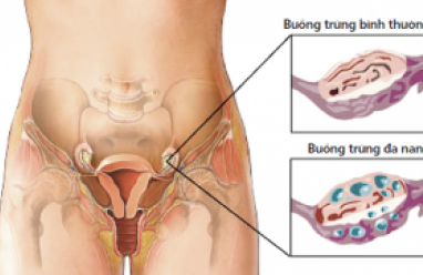 buồng trứng đa nang, nguyên nhân, mất cân bằng nội tiết, gen, insulin, triệu chứng, kinh nguyệt không đều, béo phì, trứng cá, biến chứng, rối loạn kinh nguyệt, rối loạn phóng noãn, vô sinh, điều trị, phòng bệnh