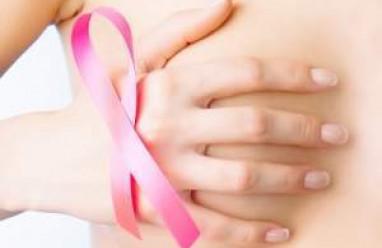 loạn dưỡng loạn dưỡng nang tuyến vú, nang tuyến vú, nguyên nhân, lo âu, căng thẳng, quá sản biểu mô, yếu tố nguy cơ, triệu chứng, khối u nang, điều trị, ung thư vú, phòng bệnh