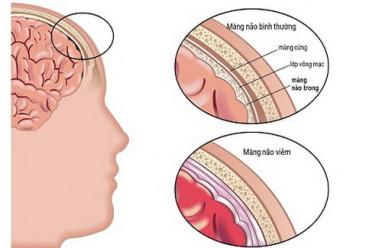 Tử vong vì viêm màng não do virut: Cần nhận biết sớm và phòng bệnh, viêm màng não, chăm sóc trẻ, cua so tinh yeu