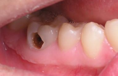 Dự phòng, bệnh sâu răng, trẻ em, làm mẹ, cần biết, cua so tinh yeu