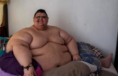 đàn ông, ăn kiêng, giảm cân, da thừa, phẫu thuật cắt bỏ một phần dạ dày, béo phì, tiểu đường, cao huyết áp, cua so tinh yeu