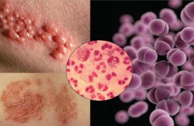nhiễm trùng qua đường tình dục, STI, quan hệ tình dục, phòng ngừa bệnh lây truyền qua đường tình dục