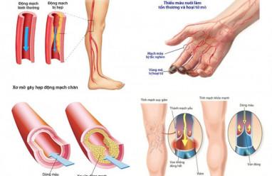 tắc động mạch, bí quyết sống khỏe, mạch máu bị tắc nghẽn, chất kích thích