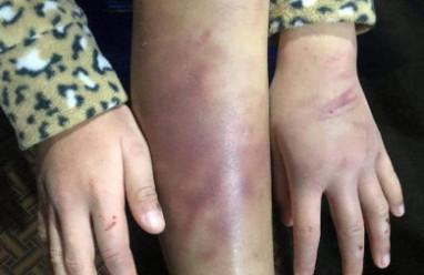 Tương lai nào cho bé gái 12 tuổi bị bạo hành và xâm hại?