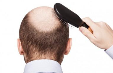 5 cách chữa hói đầu ở nam giới bằng nguyên liệu dân gian lưu truyền