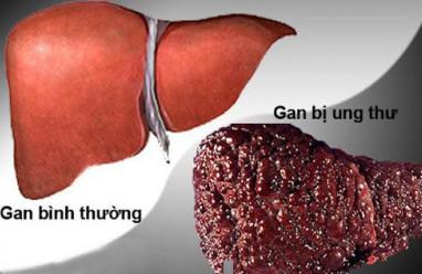 Điểm mặt những nguyên nhân gây ung thư gan