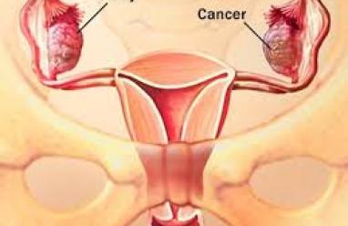 kiến thức sức khỏe, kiến thức sống khỏe, kiến thức phụ khoa, bệnh phụ khoa, buồng trứng, vô sinh nữ, bộ phận sinh dục nữ, ung thư buồng trứng