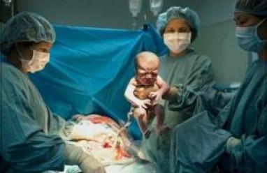 kiến thức sức khỏe, kiến thức mang thai, thai kỳ, chuẩn bị sinh, tai biến khi mổ đẻ, ảnh hưởng đến mẹ, thai nhi, sinh ngả âm đạo,