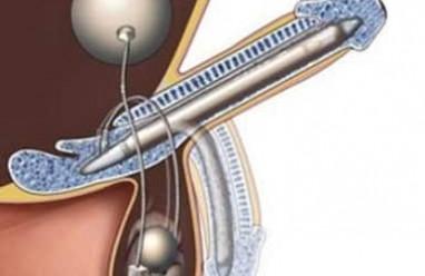 cấu tạo, bộ phận sinh dục ngoài, dương vật, bìu dái, bao qui đầu, hẹp bao qui đầu, cắt bao qui đầu