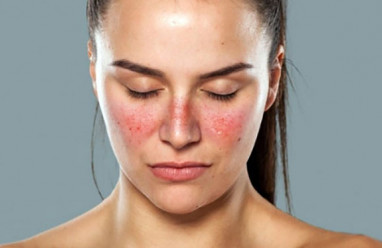 kiến thức, triệu chứng Lupus ,bệnh Lupus ban đỏ, Lupus ban đỏ ,sức khỏe, mang thai