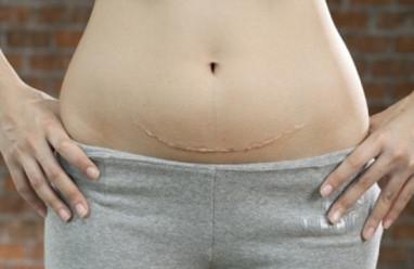 dính ruột sau sinh mổ, dính ruột sau mổ đẻ, triệu chứng dính ruột sau sinh mổ