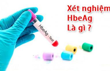 xét nghiệm, hbeag, ý nghĩa, kháng nguyên, virus, viêm gan b, hbv, điều trị