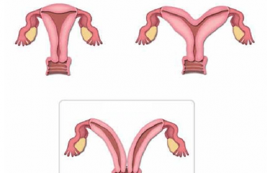 Tử cung đôi ảnh hưởng như thế nào đến khả năng sinh sản của nữ giới
