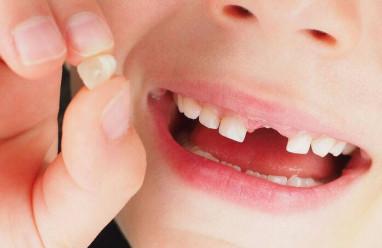 Quá trình thay răng sữa thành răng vĩnh viễn ở trẻ em