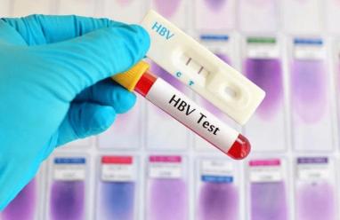 Cần làm xét nghiệm gì trước khi tiêm phòng viêm gan B