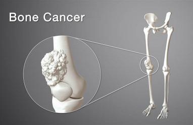 Điều trị ung thư xương ở trẻ nhỏ thành công cao nếu được phát hiện sớm